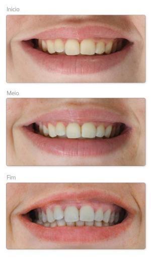 Aninha Oliveira As Fitas Clareadoras Da Oral B Sao Eficazes